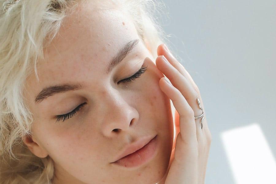 Granitos estacionales o acné primaveral